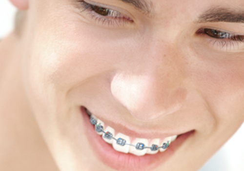 3 things to know before investing in kids' braces