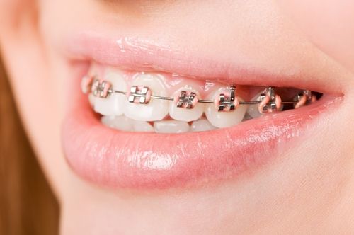 Could my child benefit from orthodontic treatment?