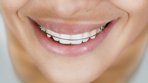What is a retainer and how does it work?
